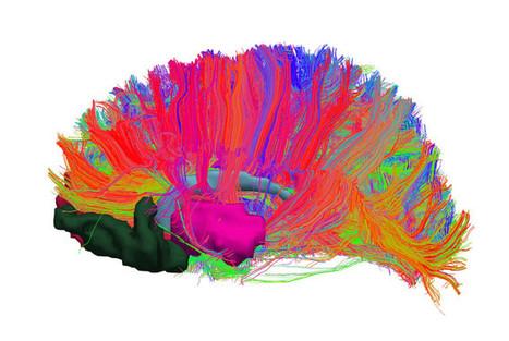 Identifican alteraciones en el sistema de recompensa cerebral de las personas con obesidad | Usal - MediNews | Scoop.it