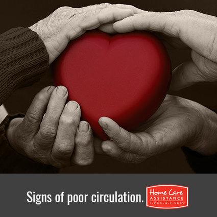 Bad Circulation in Elders | Home Care Assistance of Scottsdale | Scoop.it