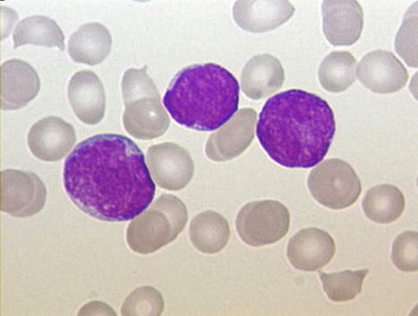 Personalized Immunotherapy for Leukemia Named Breakthrough Therapy | healthcare technology | Scoop.it