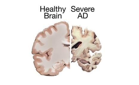 Diagnosing Alzheimer's Disease and Dementia - MemTrax | Dementia and Alzheimer's | Scoop.it