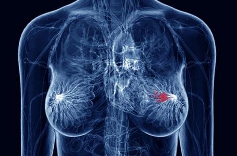 Development of a Prognostic Model for Breast Cancer Survival in an Open Challenge Environment | Diagnostico por imàgenes | Scoop.it