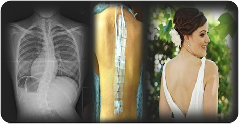 Scoliosis Surgery Cost in India Draws Medical Tourists from World Over | health and medicine | Scoop.it