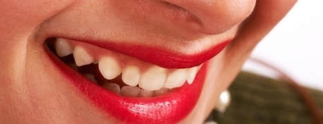 Why Your Teeth Should Be Whiten? | Avenue Dental Care Edmonds | Scoop.it