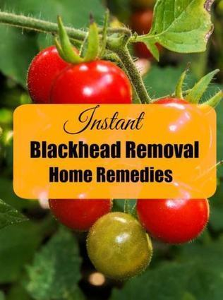 9 Instant Blackhead Removal Home Remedies Which Works • | Beauty Care for Women | Scoop.it