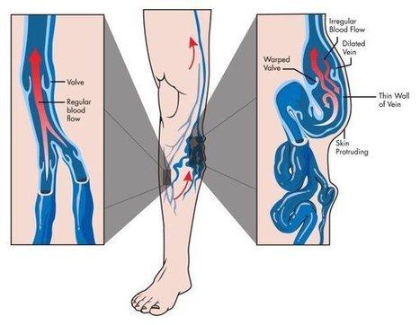 Vene varicose: 10 rimedi naturali per alleviare i sintomi e migliorare la circolazione | Rimedi Naturali | Scoop.it