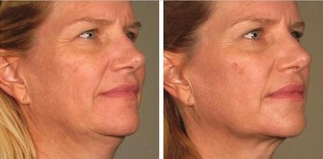 Ultherapy: lifting non chirurgico - BGN | Chirurgia Plastica News | Scoop.it