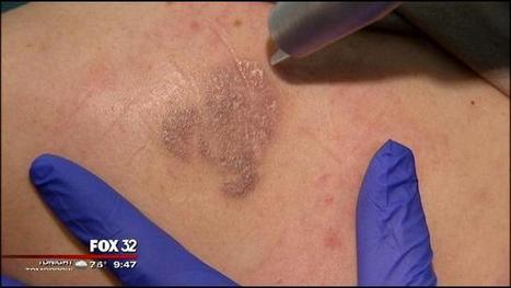 Tattoo removal business booming   Tattoo Tattoo Convention and more   Scoop.it