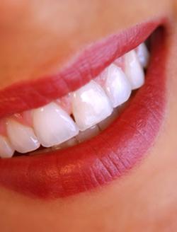Blanchiment des dents: une pratique encadrée   L'expert comptable des coiffeurs   Scoop.it