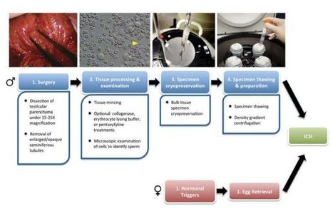 Microfluidics: The future of microdissection TESE? | Azoospermia Treatment | Scoop.it