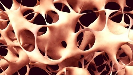 Experimental Stem Cell Treatment Reverses Osteoporosis | Health , Preventive  health | Scoop.it