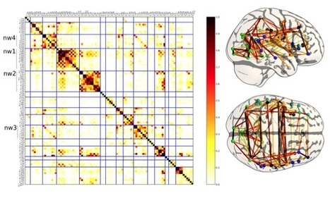 Deriving a multi-subject functional-connectivity atlas to inform connectome estimation | Network science to explore the brain | Scoop.it