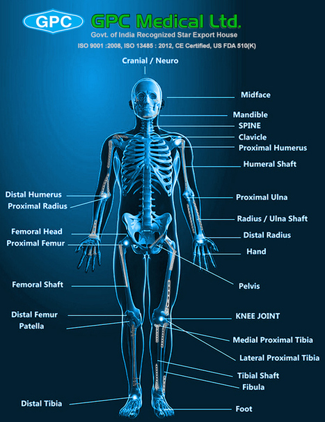 Implants in Orthopedic Trauma | Orthopedic Implants | Orthopaedic Surgical Instruments | Orthopedic Plates & Screws | Scoop.it