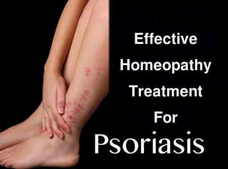 Psoriasis is an unpleasant and incurable chronic skin disease, in which red scaly patches appear on the skin 2