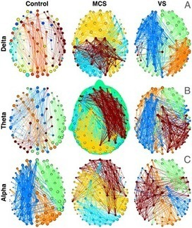 PLOS ONE: Spectral Signatures of Reorganised Brain Networks in Disorders of Consciousness | Modern Biology | Scoop.it
