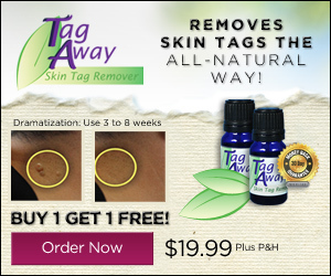 Tag Away Skin Tag Remover Special Web Offer | As Seen on TV | Scoop.it