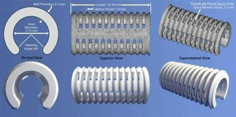 3D printing used to create 4D airway splint, saving three babies from imminent death | 3D_Materials journal | Scoop.it