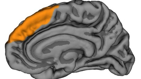Frontal brain wrinkle linked to hallucinations - BBC News | The brain and illusions | Scoop.it
