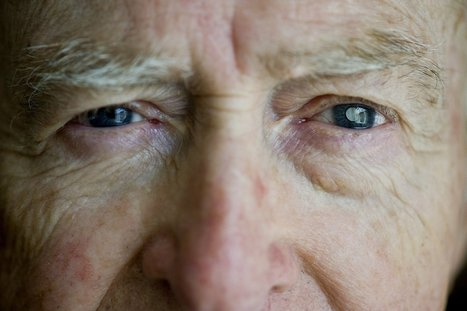 Surgically implanted telescope restores vision for California man | eyes | Scoop.it