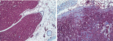 Tumor surroundings are shown to affect progression of different cancer subtypes   DNA & RNA Research   Scoop.it