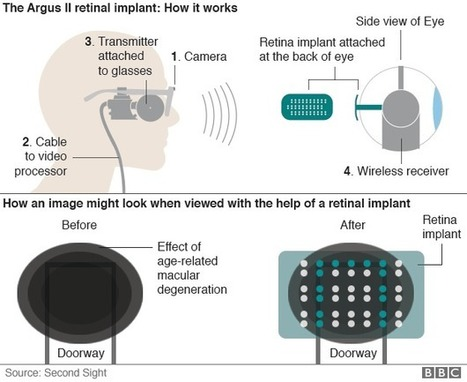 Bionic eye implant world first - BBC News | Emerging Technology | Scoop.it
