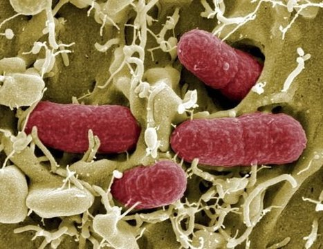 """Descubierta en EEUU una """"superbacteria"""" resistente a los antibióticos   Apasionadas por la salud y lo natural   Scoop.it"""