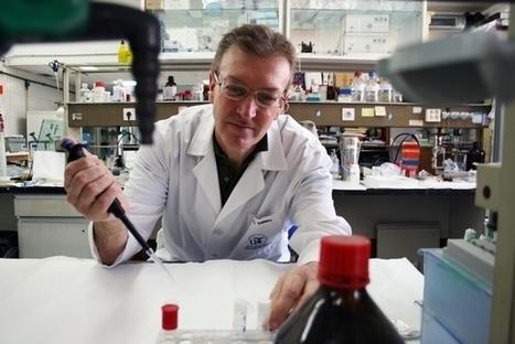 Identifican mediadores clave en los procesos de inflamación cerebral — Noticias de la Ciencia y la Tecnología (Amazings®  / NCYT®) | Neurociencia y psicología | Scoop.it