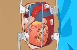 Playing Heart surgery game - Surgery Games Online | surgery games online | Scoop.it