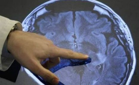 How ideas are spread in the brain | Deccan Chronicle | Things Made Easy | Scoop.it