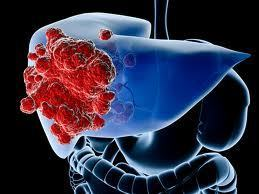 British Journal of Cancer - Smoking as an independent risk factor for hepatocellular carcinoma: the Singapore Chinese Health Study | Organ Donation & Transplant Matters Resources | Scoop.it