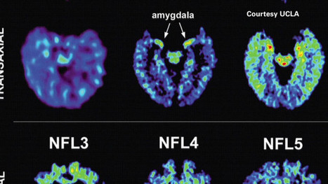 Scan may detect signs of NFL players' brain disease | Social Neuroscience Advances | Scoop.it