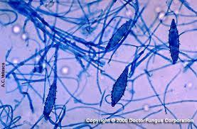 Colonias de Microsporum   Microsporum   Scoop.it