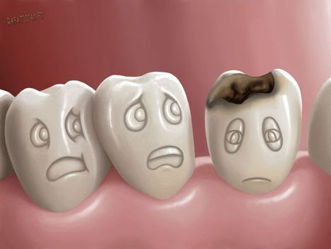 Tooth Decay - Dental cares | Dental Clinic in Kuwait: Restorative and Cosmetic Dental Center | Scoop.it
