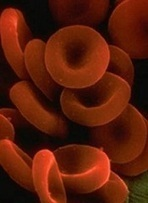 Hematology Times - New approach for treating PNH   Complement   Scoop.it
