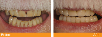 Dental Veneers Birmingham | alisterbrook | Scoop.it