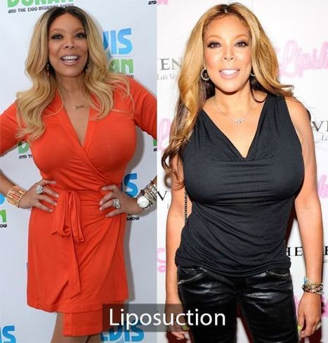 Wendy Williams Plastic Surgery | Breast Implants and Facelift | Celebrity Plastic Surgery | Scoop.it