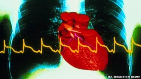 Newer heart attack blood test for women | Medical biology science news | Scoop.it