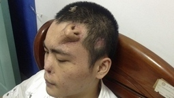 Nose grown on man's forehead | General health | Scoop.it
