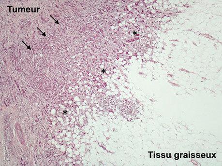 Obésité et Cancer: comment les cellules graisseuses éduquent les cellules tumorales grâce à de petites vésicules   Institut de Pharmacologie et Biologie Structure   Scoop.it