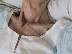 The Skinny on Dementia and Being Skinny | Salud Publica | Scoop.it