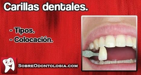 Carillas dentales: Tipos y colocación   Blog de Odontología   Odontología   Scoop.it