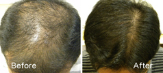 Stem Cell Therapy for prevention of hair loss and regrowth of hair | Cosmetic Dermatology Laser Skin Treatment | Scoop.it