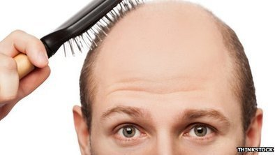 Baldness cure a 'step closer' | Science, research and innovation news | Scoop.it