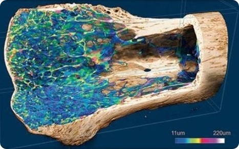 Micro-CT in preclinical imaging: bone regeneration in three dimensions | Osteoporosis New drugs Review | Scoop.it