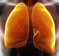 What Is Idiopathic Pulmonary Fibrosis and It's Symptoms? - NHLBI, NIH | Idiopathic pulmonary fibrosis | Scoop.it