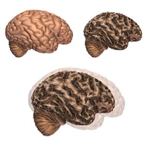Alzheimer's Changes the Brain - Alzheimer's Association   Gerontology علم الشيخوخة   Scoop.it