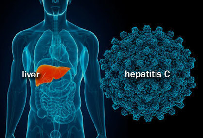 CDC lists counties at high risk of injected drug-related hepatitis C and HIV | Hepatitis C New Drugs Review | Scoop.it