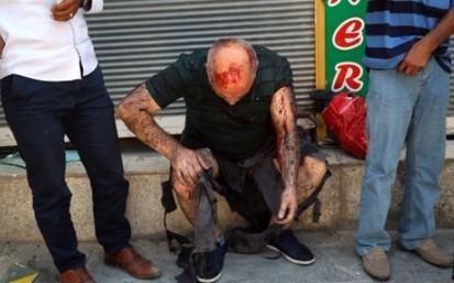 Islamic State suicide bomber kills 30 in Turkish town near Syrian border | Terrorists | Scoop.it