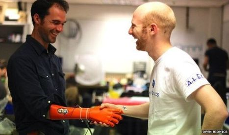 Open Bionics robotic hand for amputees wins Dyson Award - BBC News | Cyborg Lives | Scoop.it