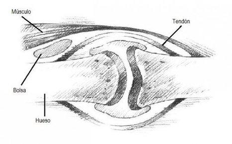 Bursitis, tendinitis y otros síndromes reumáticos de los tejidos blandos | Les meves mans | Scoop.it