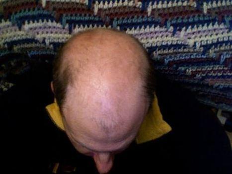 Más cerca de lograr que el cabello vuelva a crecer | INNOVA´TICS | Scoop.it